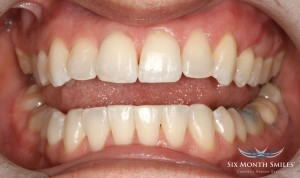Six month smile dental treatment after