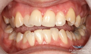 Six month smile dental treatment before