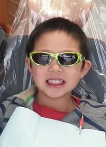 child in North Delta Dentist's chair