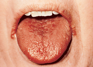 Tongue with Dry Mouth Xerostomia