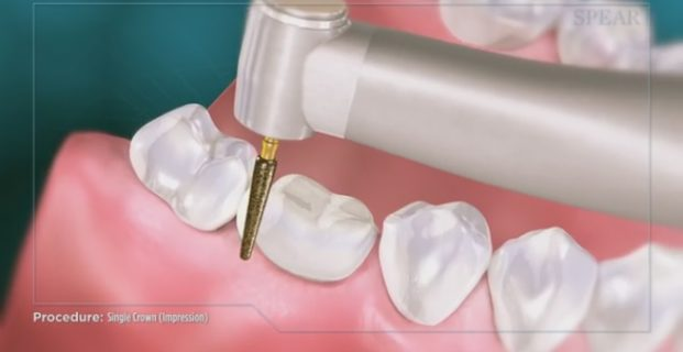Educational Video: How Crowns are Treated