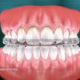 Occlusal Appliance for Tooth Wear (video)